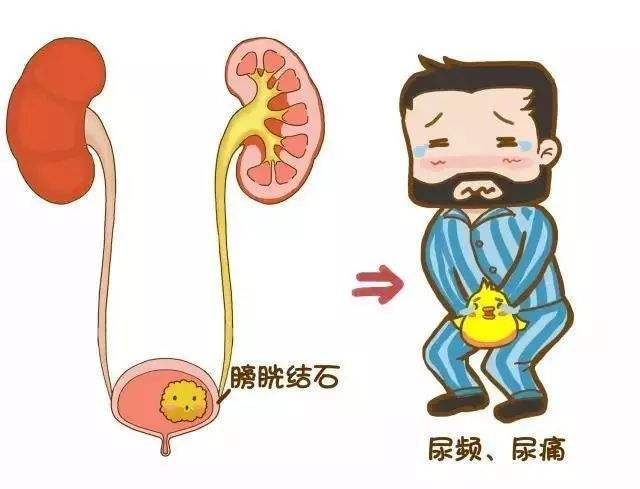 温州五马男科医院腺性膀胱炎严重吗?