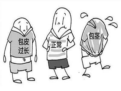 温州男科医院包茎怎么清洗污垢?