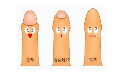 温州男性包茎不治疗会有哪些危害?