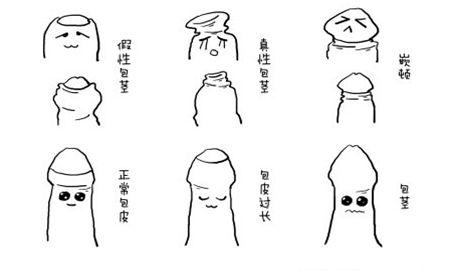 温州男科医院包皮手术会降低龟头敏感度吗?