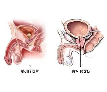 温州男科前列腺肥大在饮食方面要注意哪些?