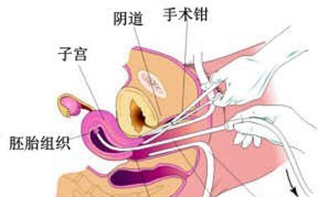温州无痛人流手术术后的复查项目有哪些?