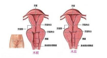 温州妇科阴道缩紧术什么时候做效果好?