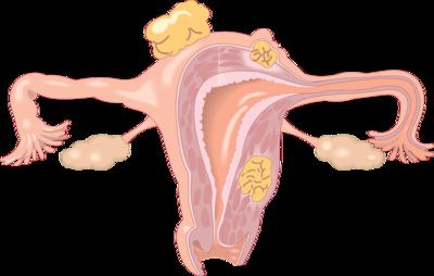 温州子宫颈增生是怎么回事?